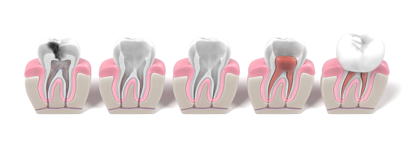 Root Canals - North Woodbridge Dental Office - Vaughan
